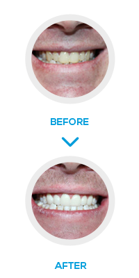London Six Month smile Before After- NW1 Dental Care