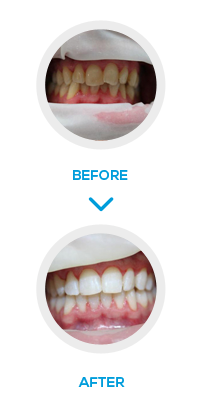 London Six Month smiles Before After- NW1 Dental Care