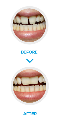 Composite Bonding treatment in London - NW1 Dental Care