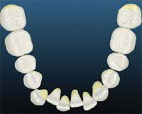 crowded-lower-arch -Simpli5 treatment in London - NW1 Dental Care