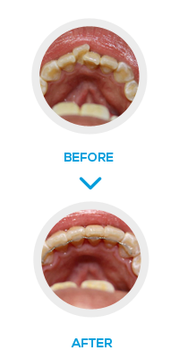 London Inman Aligner Before After- NW1 Dental Care