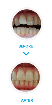 London smilelign Before After- NW1 Dental Care
