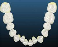 trapped-lower-laterals -Simpli5 treatment in London - NW1 Dental Care