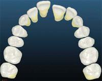 upper-arch-with-spacing -Simpli5 treatment in London - NW1 Dental Care
