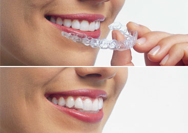 orthodontist Camden North London