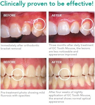 tooth-mousse-before-after