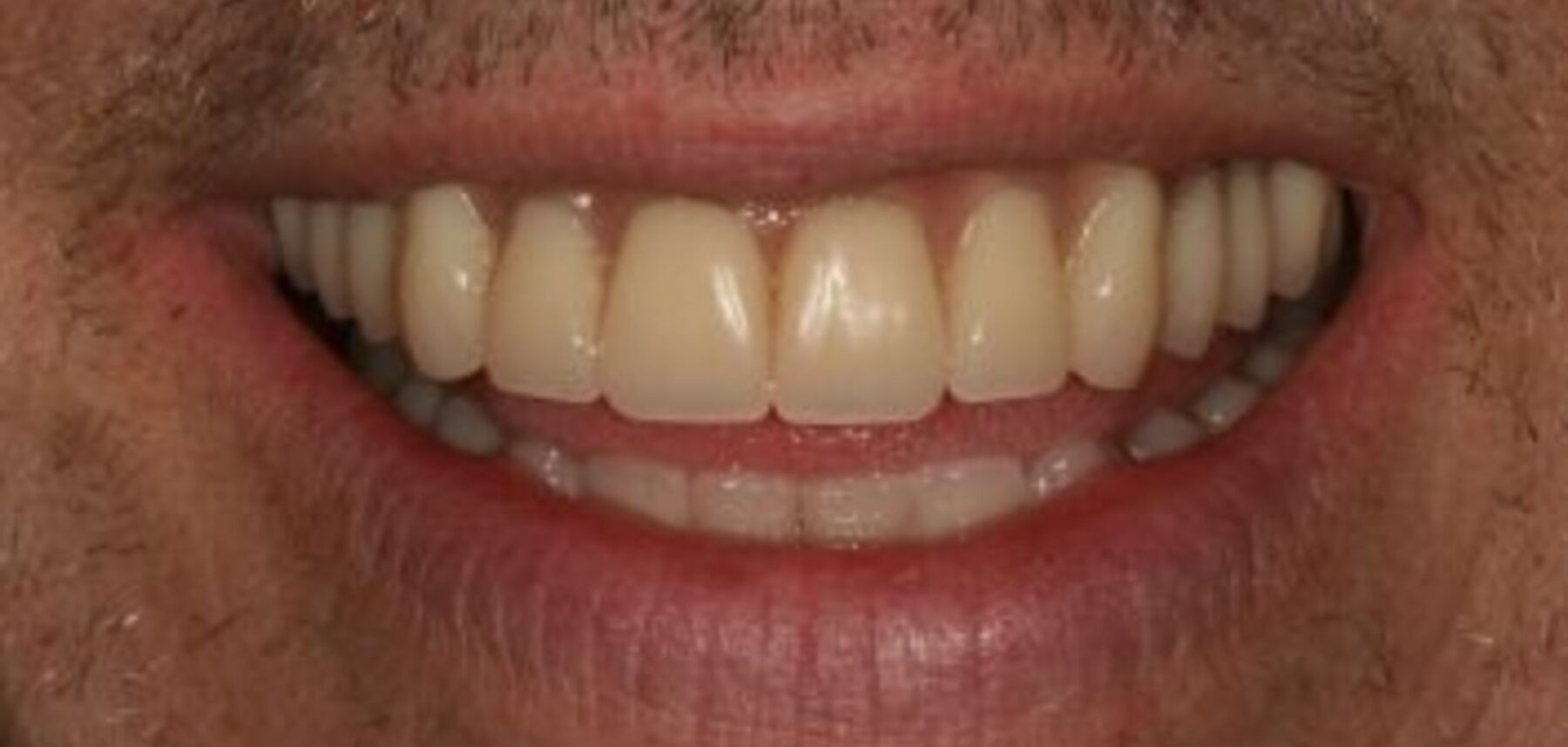 All-on-4-after- NW1 Dental Care