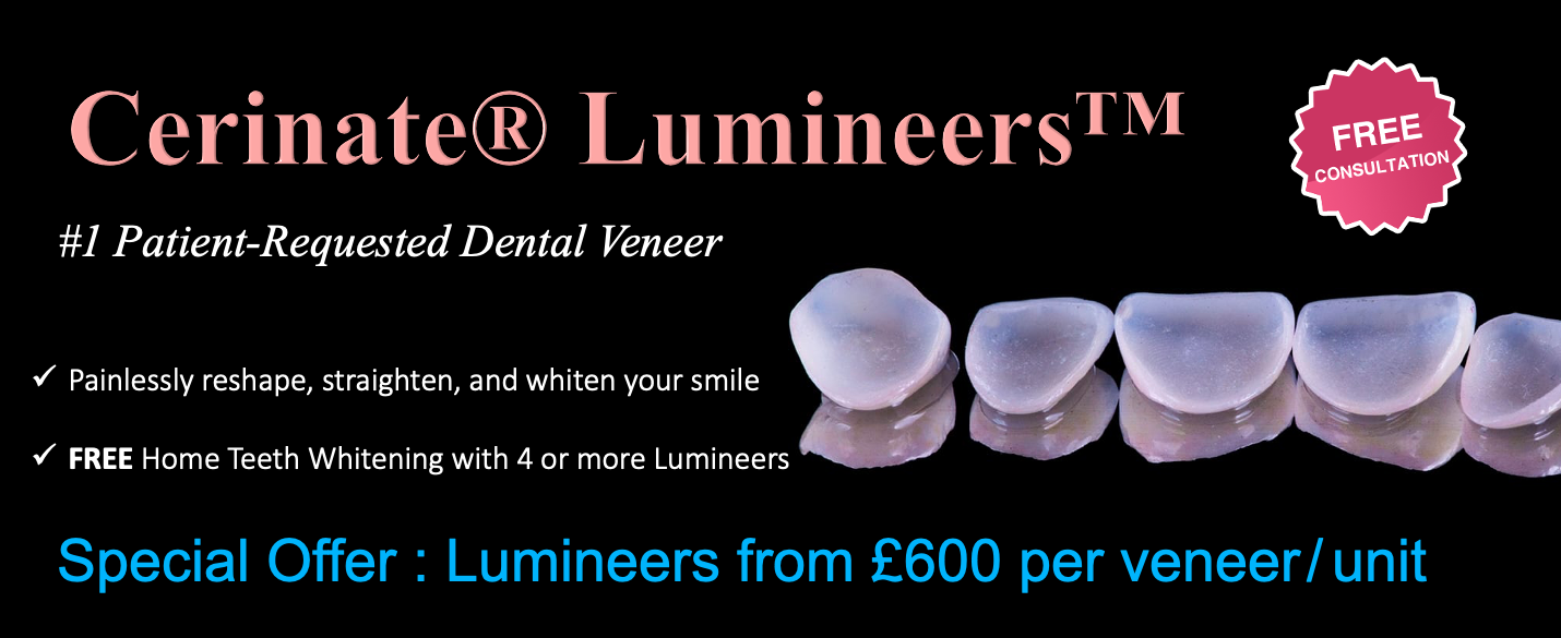 Cerinate® Lumineers in London from £600 - NW1 Dental Care