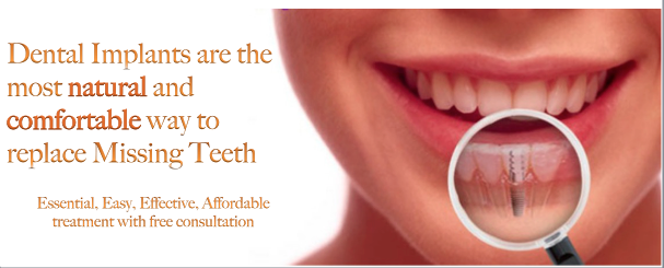 Dental Implants London - Cost of Implants in London and UK