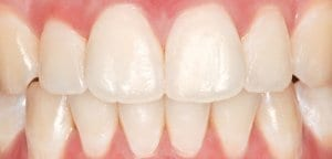 White Spot Treatment - NW1 Dental Care