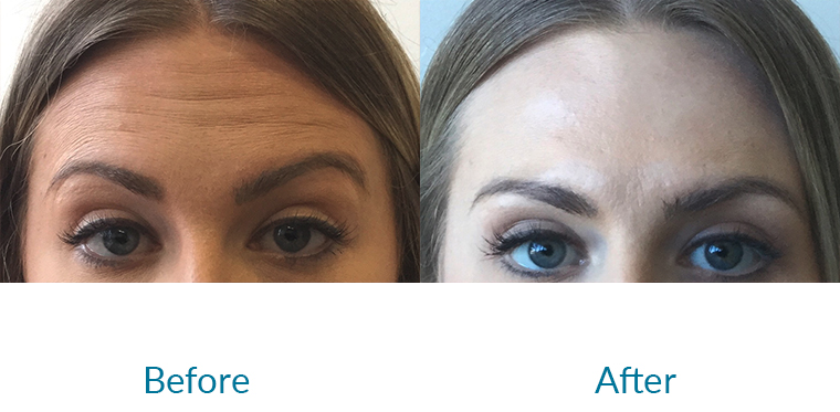Anti-Wrinkle / Botox Injections in London - Before and After