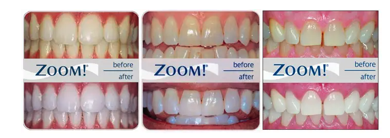 Philips Zoom Teeth Whitening offer in Camden and London