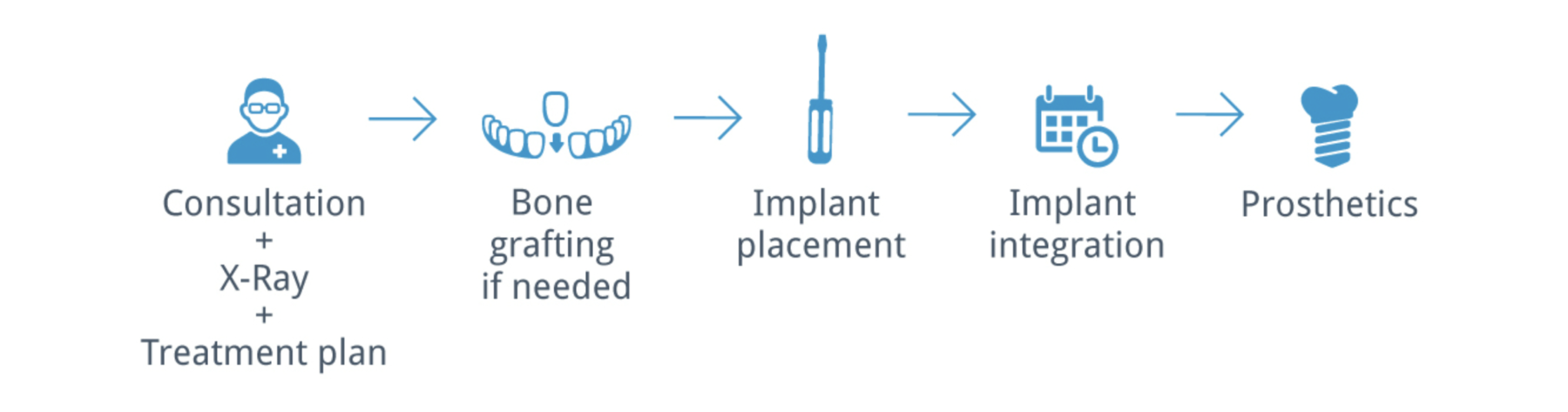 Dental Implant Procedure in London - NW1 Dental Care