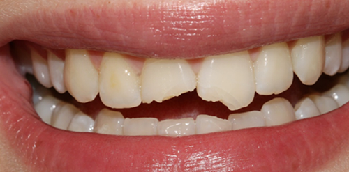 Cosmetic bonding in London - chipped tooth