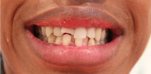 Cosmetic bonding in London - Cracked tooth