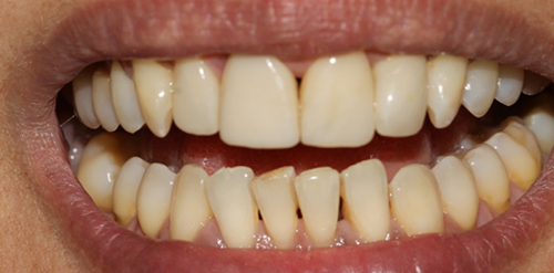Cosmetic bonding in London - NW1 Dental Care