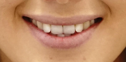 Inman Aligner in London - NW1 Dental Care