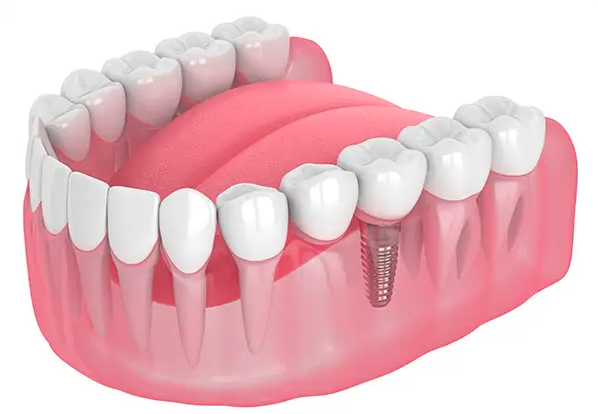 Single Dental Implant London- Replace single tooth