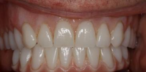 Full Mouth reconstruction - Full mouth dental Implant in London