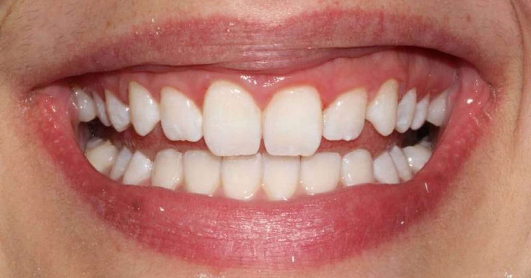 London Teeth Whitening After - NW1 Dental Care