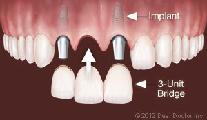 Replace Multiple teeth with Dental Implants in London