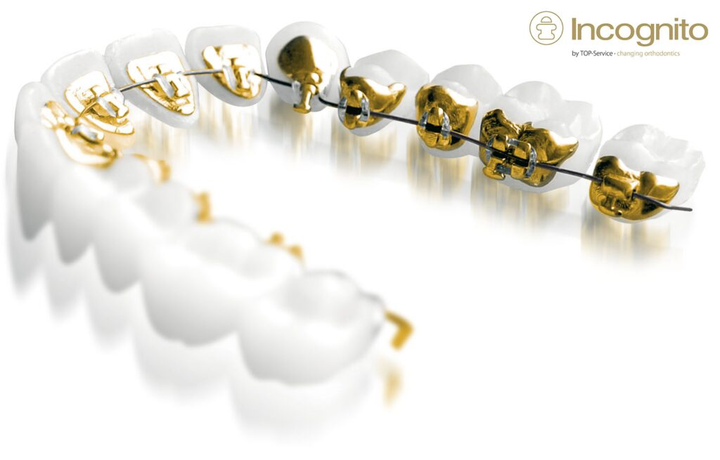 NW1 Dental Care - incognito lingual braces London