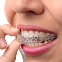 removable aligners