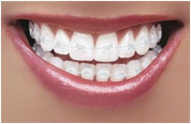 NW1 Dental Care - 6 month smiles London