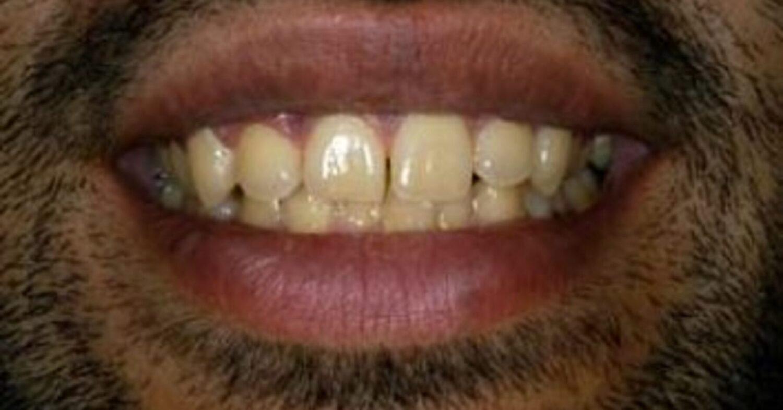 London Teeth Whitening Before - NW1 Dental Care