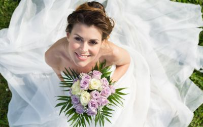 Wedding Smile Makeover Packages in London